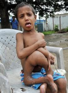 Дипак Кумар Пасваан, мальчик из индийского штата  штате Бихар, родился прожил 7 с фрагментами близнеца-паразита
