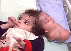 Манар Магед-  египетская девочка, родившаяся в 2004 году с паразитным близнецом. Вторая голова могла шевелить губами, закрывать глаза, но по словам врачей, сознанием не обладала.