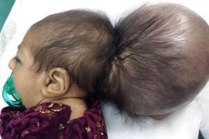 Афганистан. На черепе 2-месячной Asree Gul находился огромный нарост, по своим размерам не уступающей голове ребенка.